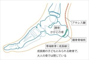 踵骨骨端症-100