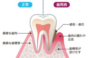 歯-107