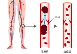 血栓症101