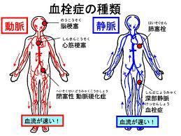 血栓症108