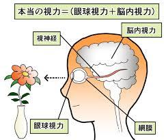脳内視力10-1