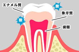 酸蝕歯10-6